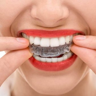 invisalign- __Sunrise Dental | Chapel Hill | Durham | Raleigh | Cary, NC